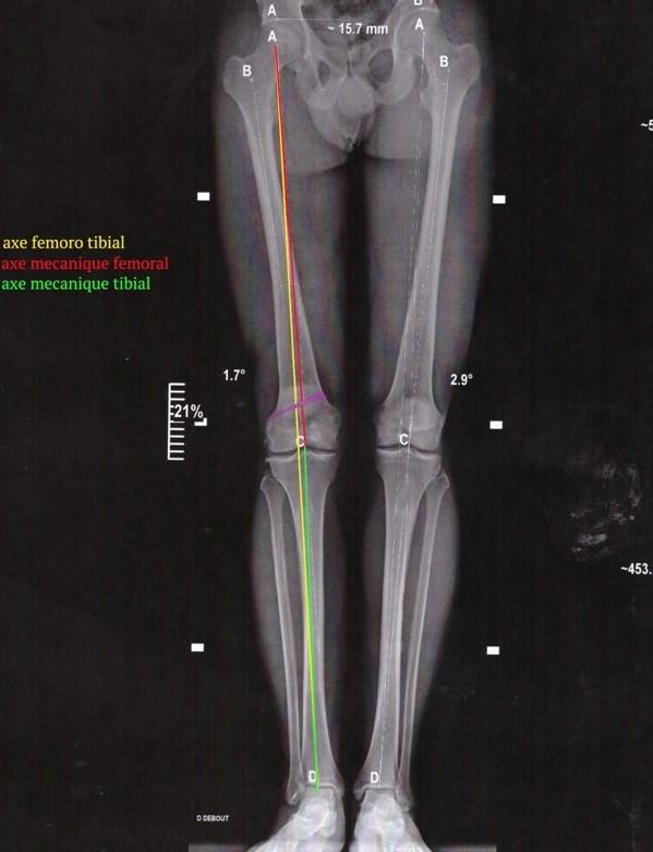 Osteotomie femorale 1