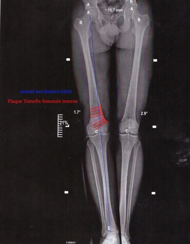 Osteotomie femorale 3
