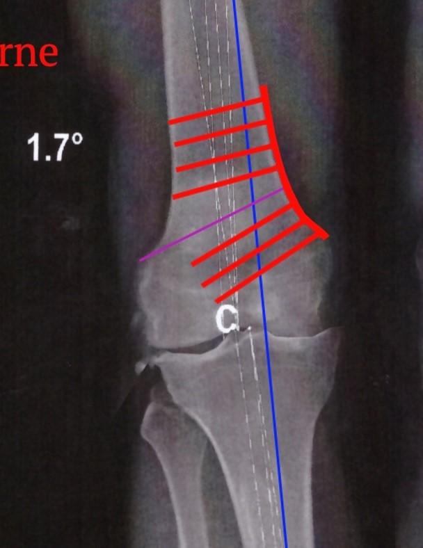 Osteotomie femorale 5
